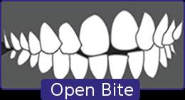 open-bite-1